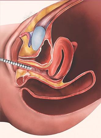 tratamientom-atrofia-vaginal-2