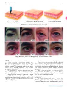 hoja de antes y despues publicacion Dr Lima